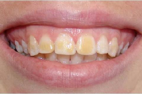 Clínica Odontológica M & M Dentalli - Dr. Maurício Spillere Santos - Foto Inicial 1.1