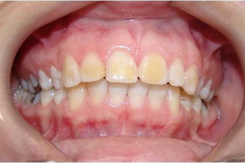 Clínica Odontológica M & M Dentalli - Dr. Maurício Spillere Santos - Foto Inicial 1.0