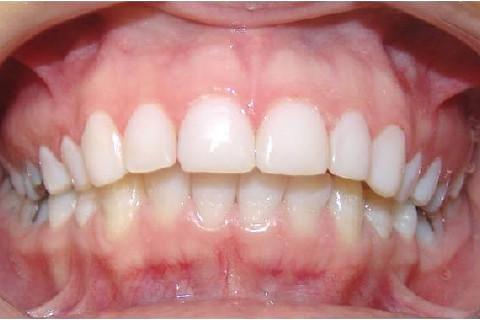 Clínica Odontológica M & M Dentalli - Dr. Maurício Spillere Santos - Foto Final 2.0