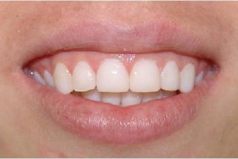 Clínica Odontológica M & M Dentalli - Dr. Maurício Spillere Santos - Foto Final 2.1