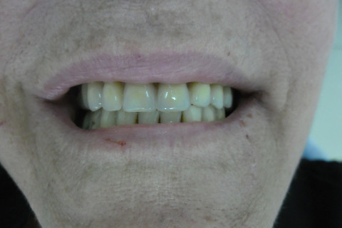 Entrega da Prótese sup 27 horas após a realização da cirurgia.