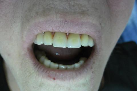 Prova dos dentes em cera.