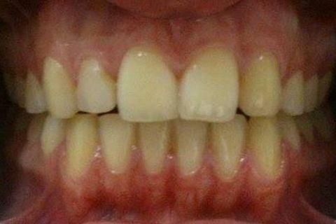 Figura 1 - Visão Frontal do Sorriso