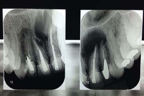 Radiografia indicando localização e extensão da lesão.