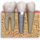 Dr. Flavio Hamilton Braga (Implantodontista)