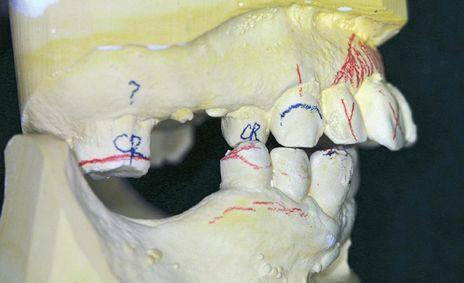 Figura 13-1 - A montagem de diagnóstico permite a confirmação da necessidade de exodontia após exame clínico. A - A posição do dente anterior e o estado da doença periodontal crônica requerem extração para tratar a queixa do paciente quanto aos dentes mal posicionados e doloridos.