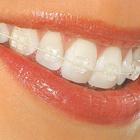Dra. Grazielle Simon Clínica Odontológica (Ortodontista)