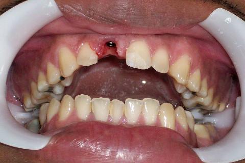 implante instalado no elemento 11.