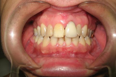 Foto inicial , muitas restaurações manchadas e antigas , dentes escurecidos e prótese no dente 21.