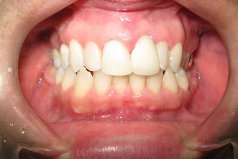 Nesta foto final vemos o final do tratamento , primeiro foi feito o clareamento de consultório em 3 sessões , após foi feita a troca de restaurações manchadas e defeituosas, infelizmente o paciente optou por não trocar a prótese do dente 21 , se trocasse o resultado seria melhor ainda.