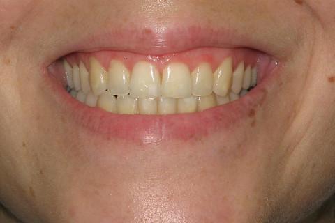 Foto inicial , observa-se muita placa , manchas brancas de esmalte e cor escura nos dentes.