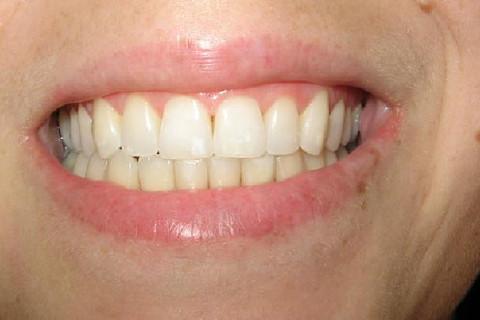 Foto final , resultado após o clareamento , microabrasão e profilaxia.