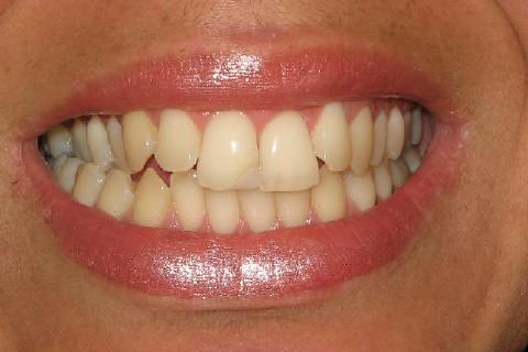 Foto inicial , dentes escuros com restauração no dente 11 necessitando ser trocada (anti-estética) Observa-se mordida cruzada também .