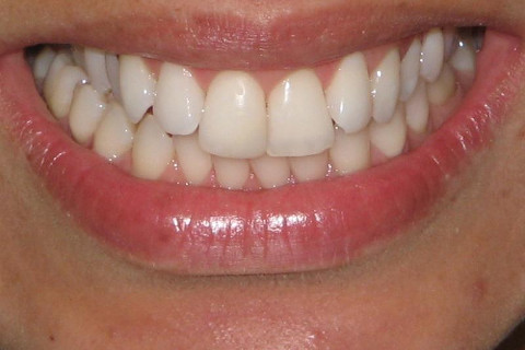 Foto final , dentes clareados , restauração estética no dente 11 e profilaxia . Sugeri correção ortodôntica (aparelho) para melhor posicionamento das arcadas , mas infelizmente a paciente não quis fazer , pois o único objetivo da paciente era clarear os dentes .