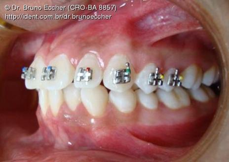 BRUNO ECCHER Ortodontia