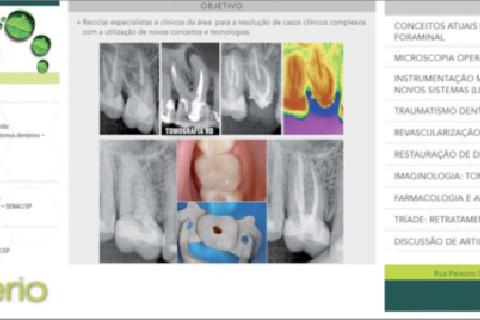 Abordagem moderna da Endondontia, conceitos atuais. Até pra quem não é endodontista vale a pena conferir, já que se relaciona com todas as outras áreas da Odontologia. Fica a dica!!