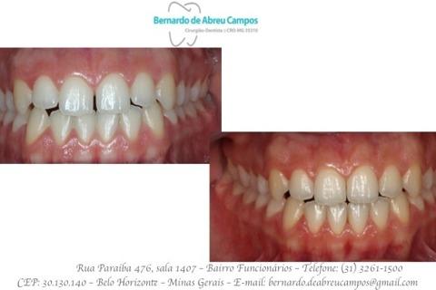 Vista Frontal. Fechamento dos diastemas com uso de 3 placas (45 dias)