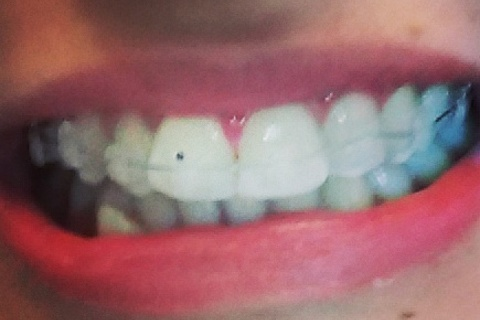 Quando colados aos dentes com um fio estético, como este de ródio, estes aparelhos literalmente somem .