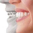 Dr. Rummenigge Bandoli (Cirurgião-Dentista)