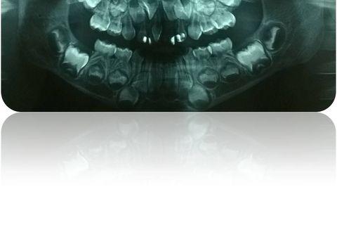 Radiografia Panorãmica