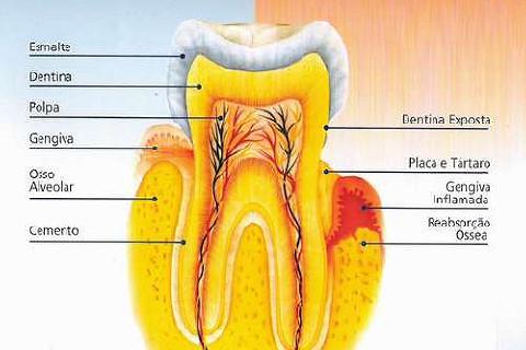 Para ajuda no estudo da prova quinzenal, imagem interessante que achei no site Santa Apolonia Odontologia (http://www.santaapolonia.com/) onde mostra de um lado aspecto de dente sadio e do outro periodontite.