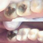Jullian Alves (Estudante de Odontologia)
