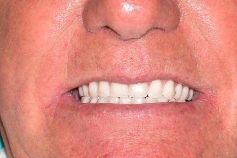 Caso finalizado-linha do sorriso