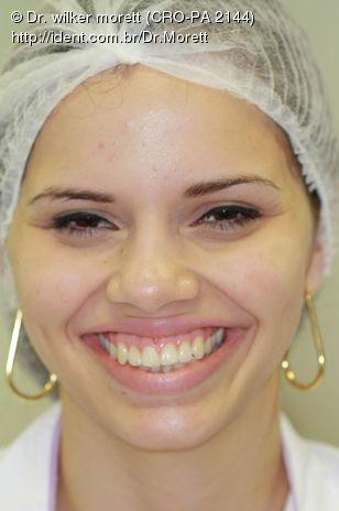 Sorriso Inicial- queixa : exposicao excessiva ao sorrir !!