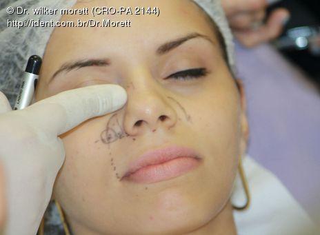 Curso de Capacitação em Bioplastia para Dentistas
