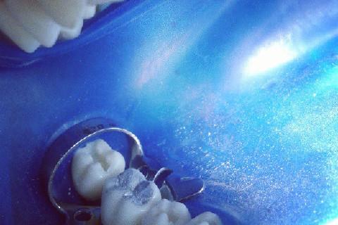 restauração de amalgama, dente 46
