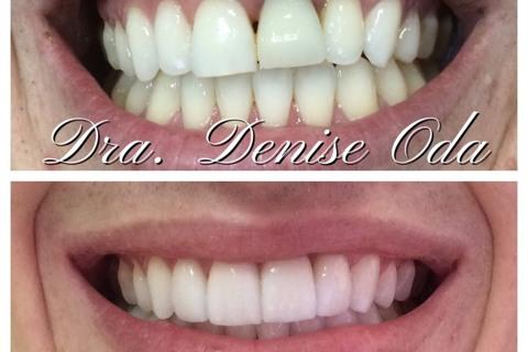 Lentes de Contato dentais e coroa sobre implante!