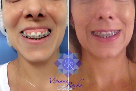 Correção do sorriso gengival com Botox