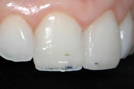 Estratégia de cores:TBlue (Opallis, FGM) – Resina de alta tranlucidez com aspecto ligeiramente azulado aplicada desde a face palatina até próximo a face vestibular entre os mamelos e a borda incisal, conforme a imagem.DA1 (Opallis) – Dentina utilizada em grande quantidade para mascarar a linha de fratura.DBleach (Opallis) – Dentina branca utilizada sobre a camada de dentina DA1 para clarear um pouco a restauração e, ainda, permitir mascarar a linha de fratura.OW (Opallis) – Cor extra opaca branca empregada para reproduzir o halo opaco branco da borda incisal.VH (Opallis) – Cor de esmalte translúcida utilizada em uma fina camada somente após mascarar a zona de transição dente/resina e caracterizar a região incisal.