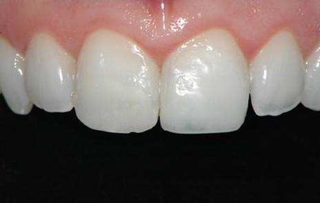 Imagem obtida após a conclusão da restauração no incisivo central superior esquerdo