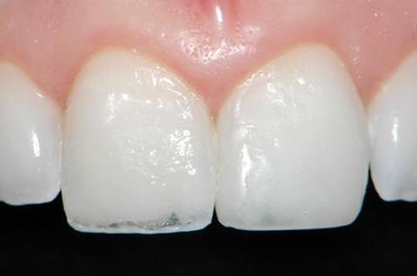 Aspecto da restauração do incisivo central direito, após a aplicação das camadas de dentina e caracterização da borda incisal. Assim como no caso anterior, notem a grande quantidade de dentina utilizada na linha de fratura para mascará-la.