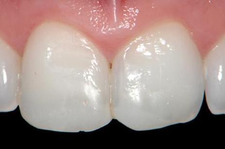 Incisivos centrais superiores com restaurações apresentando alterações de cor e forma. É possível notar ainda a translucidez incisal nos dentes 12 e 22.