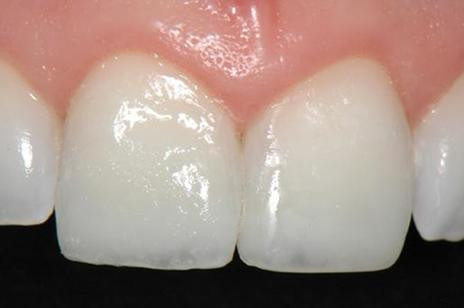 Vista oclusal e lateral da restauração imediatamente após a aplicação da camada de esmalte (VH).