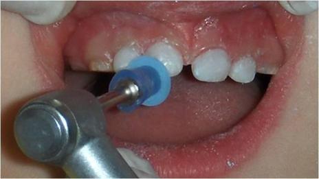 Polimento das restaurações com discos diamondpro – FGM, fazendo a sequência das quatro granulações disponíveis, grossa, média, fina e extra fina.