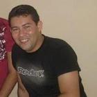 Ywaelson Cardoso (Estudante de Odontologia)