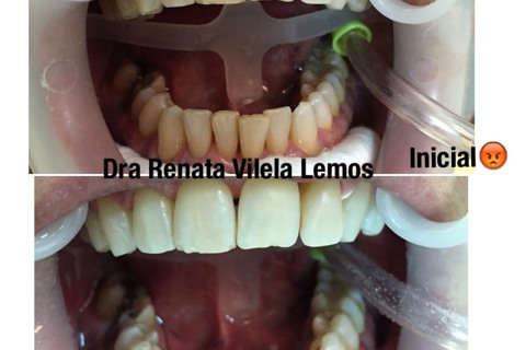 Clareamento Dental a laser com Whiteness HP Maxx