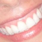 Dra. Gleicy Bueno Costa Graciola (Cirurgiã-Dentista)