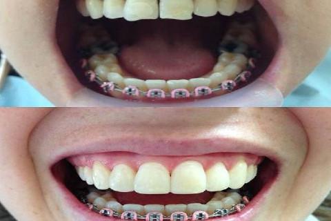 Comparando antes e depois do tratamento