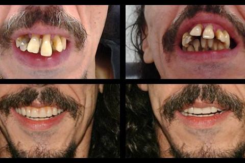 Reabilitação oral - Prótese Total