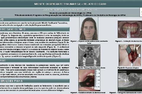 Pôster Digital para apresentação na 41º Jornada Odontológica Sul-Riograndense