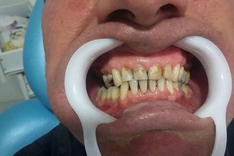 Dentes com coloração amarelo-laranja, com resinas de outras colorações.