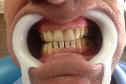 Após realizar a endodontia dos incisivos superiores, realizamos a prótese fixa e deixamos o sorriso mais uniforme.