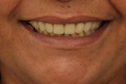 Sorriso Final