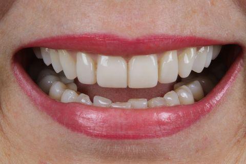 Finalização do caso - Facetas de resina nos dentes 12,11,21,22,24 e 25.
