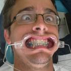 Dr. Angelo M Bonatto (Cirurgião-Dentista)
