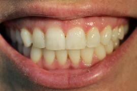 Clareamento Dental - Relato de Caso